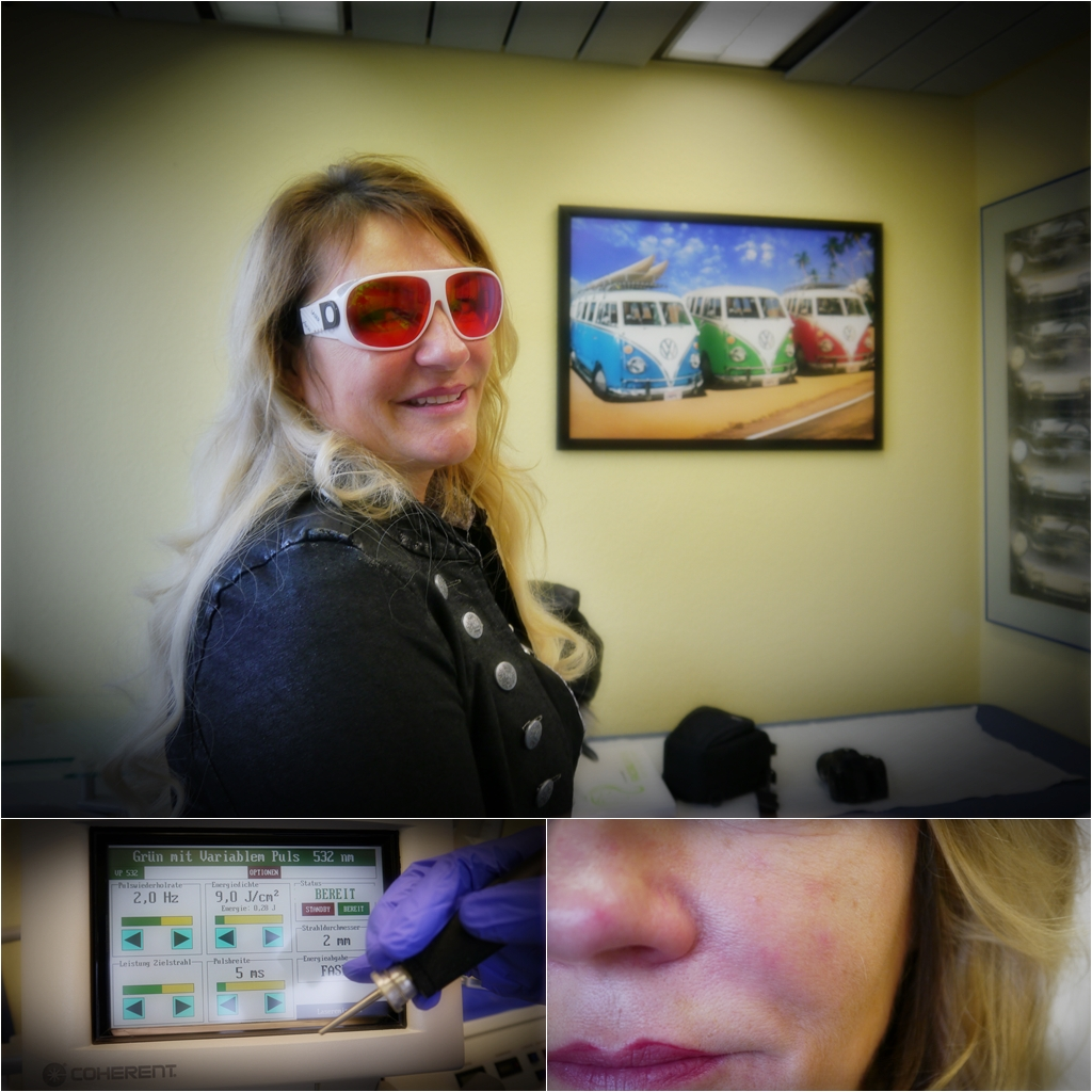 Laserbehandlung bei Rosazea