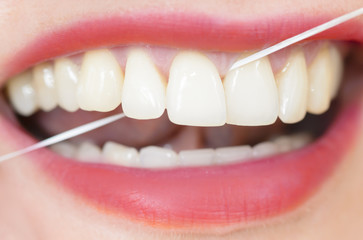 Test Braun Oral B Pro 3000